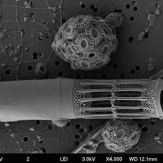 Microscopic image of coccolithophorid